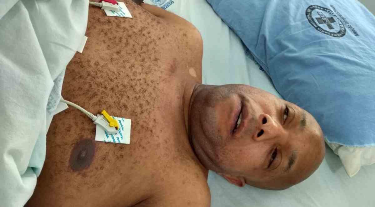 Adeildo Costa no hospital