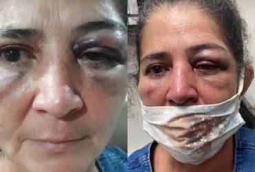 Mulher agredida pelo pastor